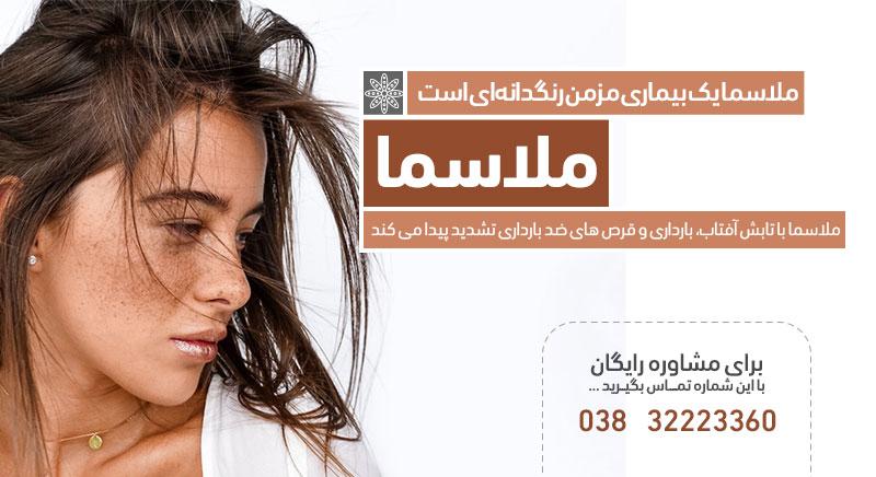 ملاسما جوانسازی درمان های پوستی کلینیک دکتر پرستو خسروانی بهترین متخصص پوست، مو و زیبایی شهرکرد، اصفهان تهران