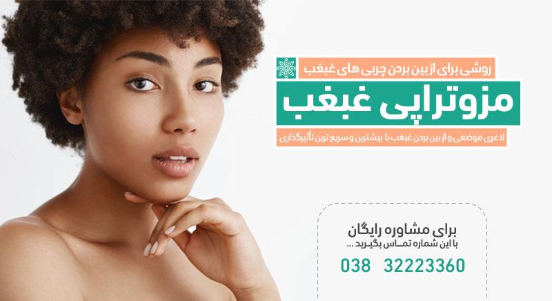 مزوتراپی غبغب لاغری موضعی مزوتراپی مزو غبغب کلینیک دکترپرستوخسروانی بهترین متخصص پوست، مو و زیبایی