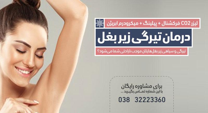 درمان تیرگی زیر بغل کلینیک دکتر پرستو خسروانی بهترین متخصص پوست، مو و زیبایی شهرکرد