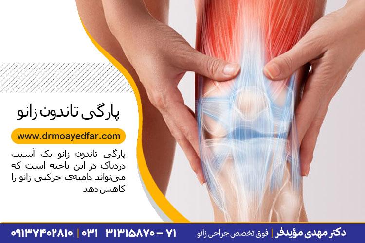 درمان پارگی تاندون زانو در اصفهان