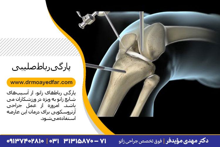 جراحی رباط صلیبی قدامی در اصفهان