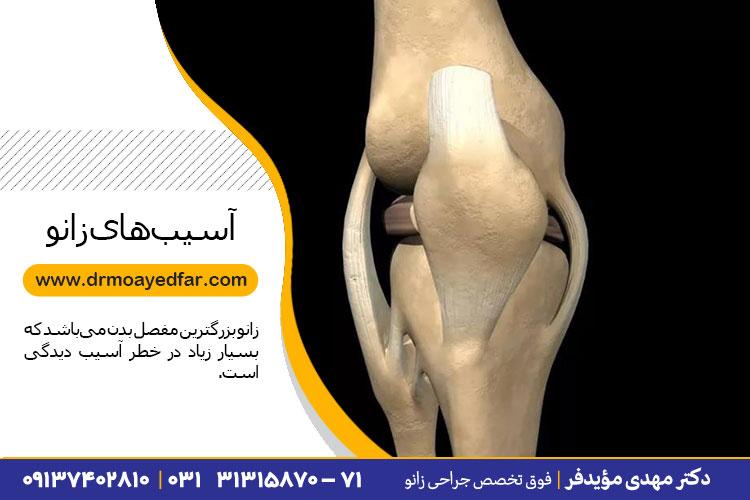درمان آسیبهای زانو در اصفهان