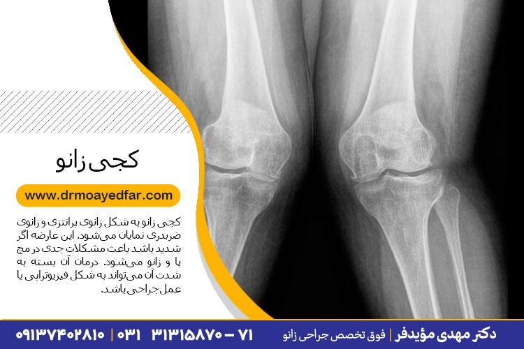 درمان کجی زانو در اصفهان