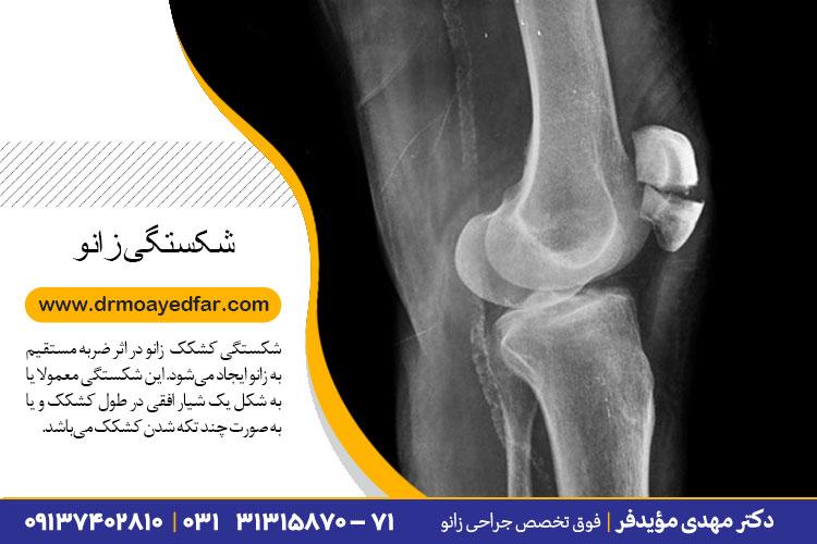 درمان شکستگی کشکک زانو در اصفهان