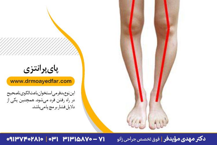 درمان پای پرانتزی در اصفهان