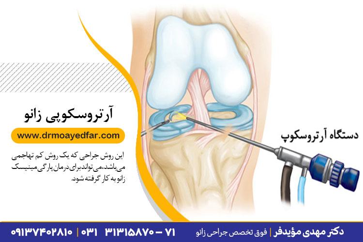 بهترین جراحی آرتروسکوپی در اصفهان