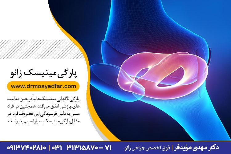 درمان پارگی مینیسک در اصفهان