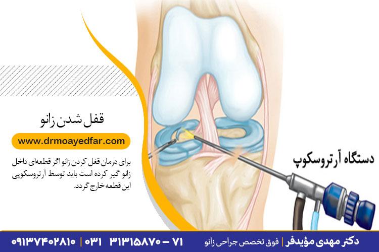 درمان قفل شدگی زانو در اصفهان
