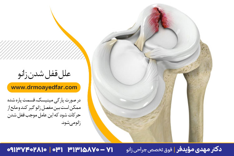 علل قفل شدن زانو در اصفهان