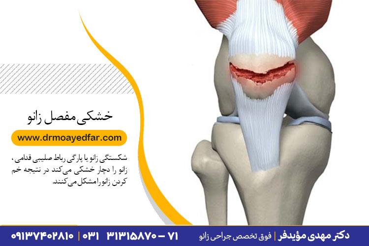 درمان خشکی مفصل زانو در اصفهان