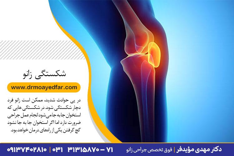 درمان شکستگی زانو در اصفهان