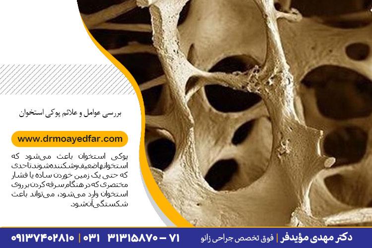 بررسی عوامل و علائم پوکی استخوان