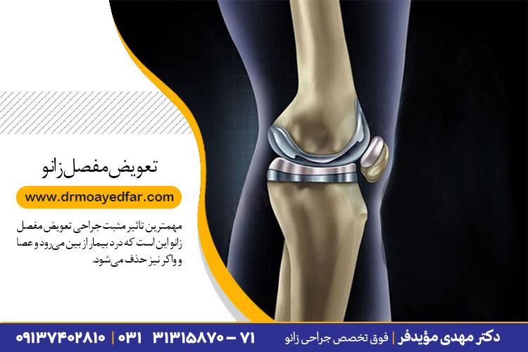تعویض مفصل زانو در اصفهان