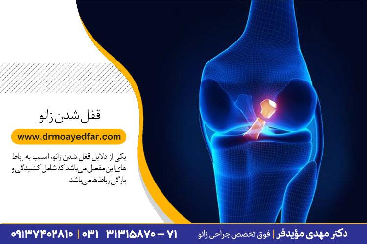 درمان قفل شدن زانو در اصفهان