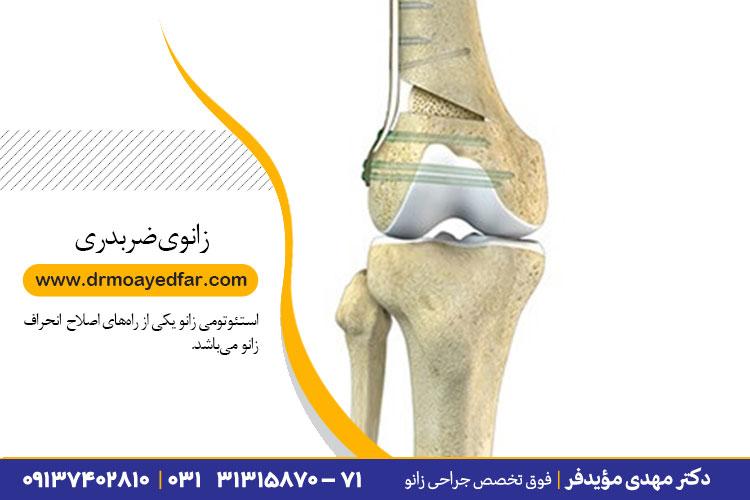 اصلاح زانوی ضربدری در اصفهان