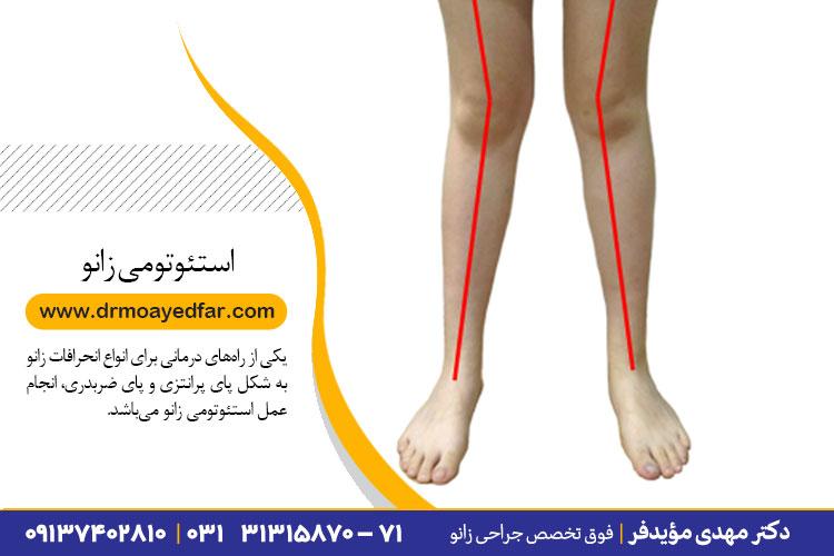 انجام عمل استئوتومی زانو در اصفهان