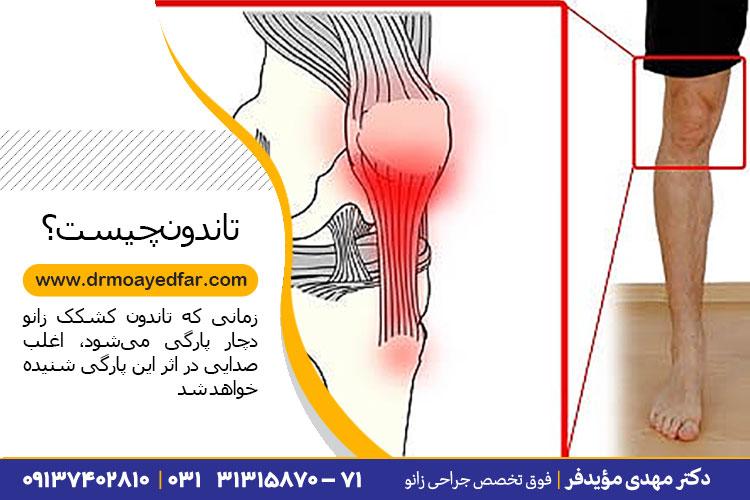 درمان پارگی تاندون در کلینیک دکتر مهدی مؤیدفر
