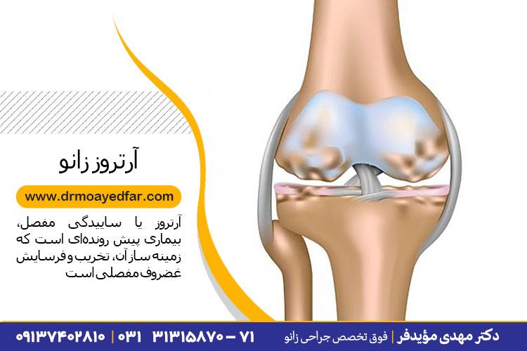 درمان آرتروز زانو در اصفهان