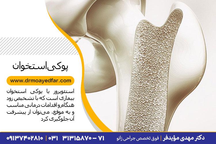 درمان پوکی استخوان زانو در اصفهان