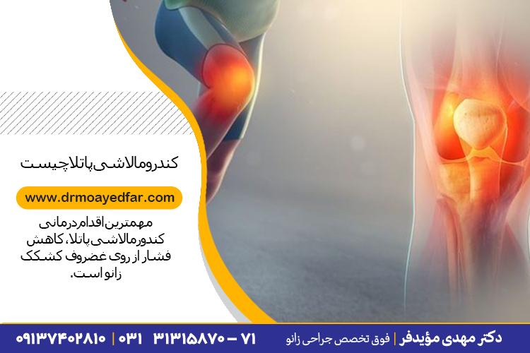 درمان نرمی غضروف کشکک زانو در اصفهان