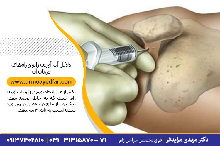 درمان آب آوردن زانو در اصفهان