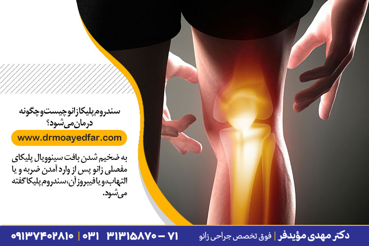 درمان سندروم پلیکا زانو