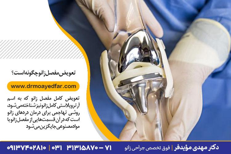 روش جراحی تعویض کامل مفصل زانو | جراح زانو