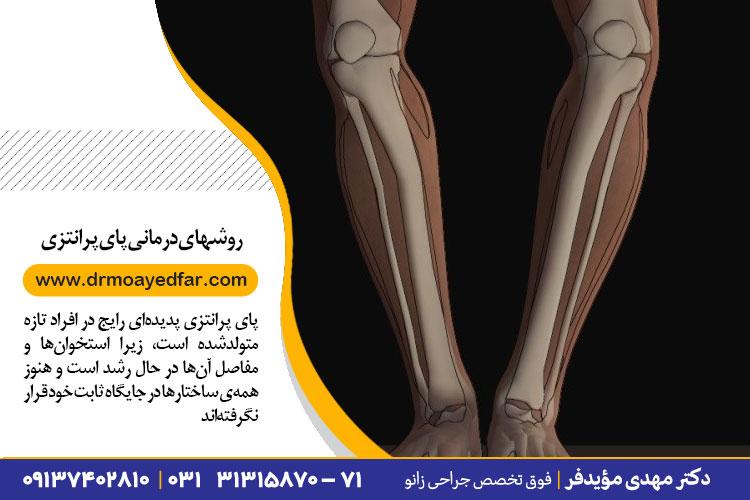 روشهای درمانی پای پرانتزی