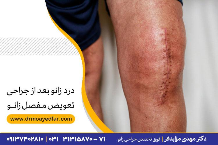 درد زانو بعد از جراحی تعویض مفصل زانو
