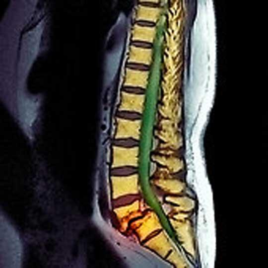 بهترین روش در درمان دیسک و سیاتیک