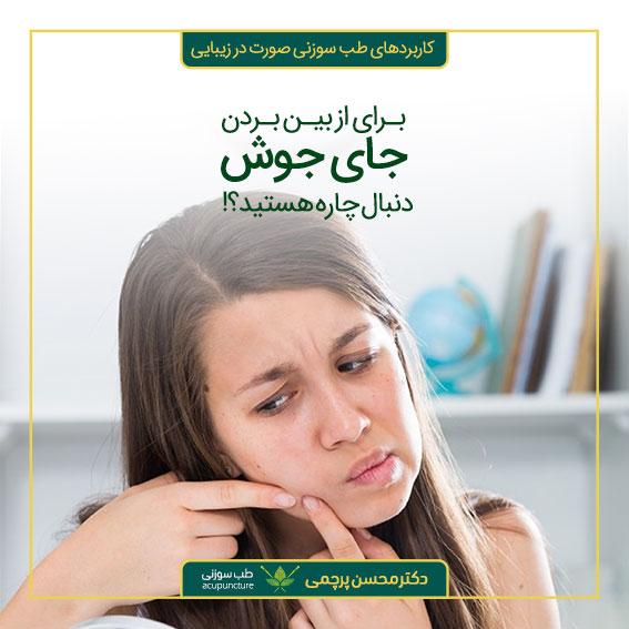 درمان جای جوش با طب سوزنی بهترین متخصص طب سوزنی دکتر محسن پرچمی