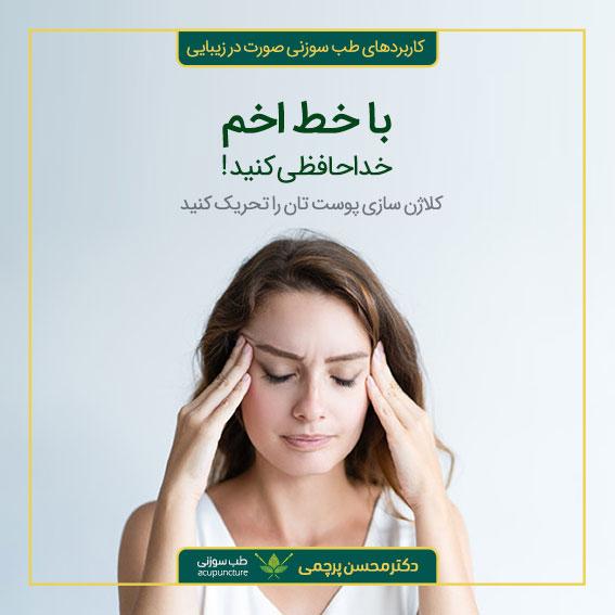 درمان خط اخم با طب سوزنی دکتر محسن پرچمی بهترین متخصص طب سوزنی