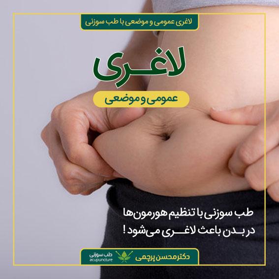 لاغری موضعی و عمومی با طب سوزنی دکتر محسن پرچمی بهترین متخصص طب سوزنی ایران