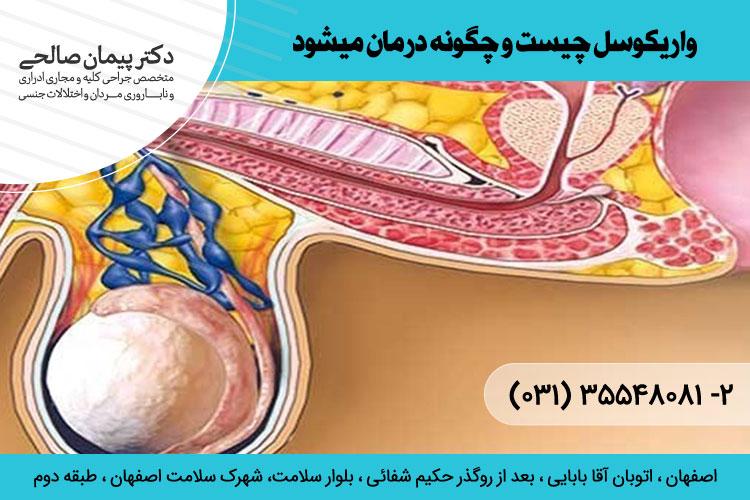 بهترین درمان واریکوسل در اصفهان