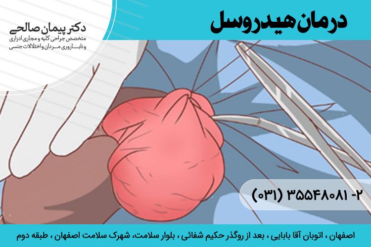 درمان هیدروسل در اصفهان