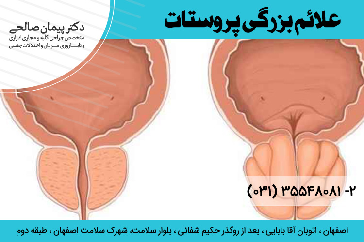 بهترین درمان بزرگی پروستات در اصفهان