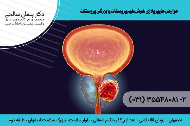 درمان بزرگی پروستات د اصفهان