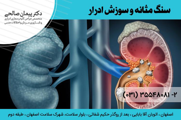 درمان سنگ مثانه در اصفهان