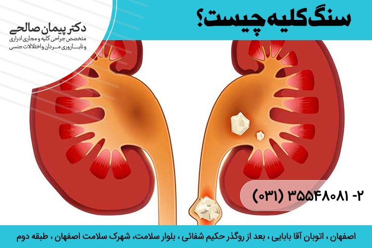 بهترین درمان سنگ کلیه در اصفهان