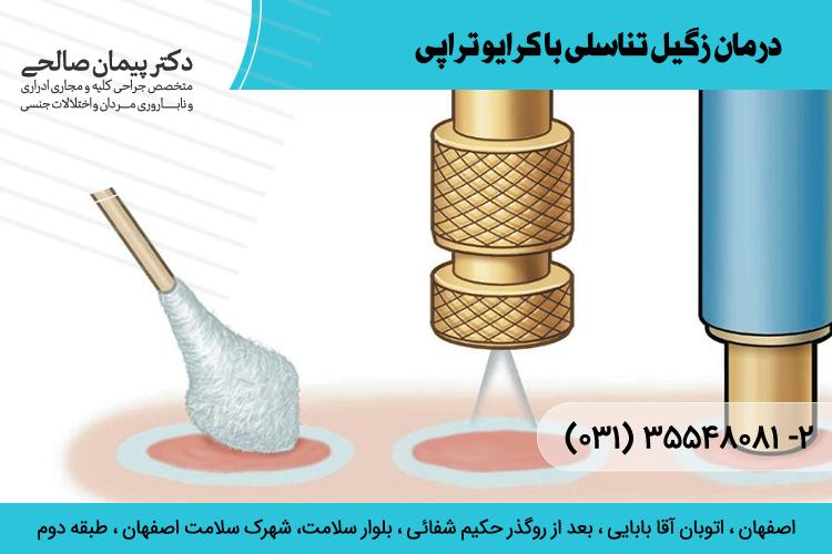 بهترین درمان زگیل تناسلی با کرایو تراپی در اصفهان