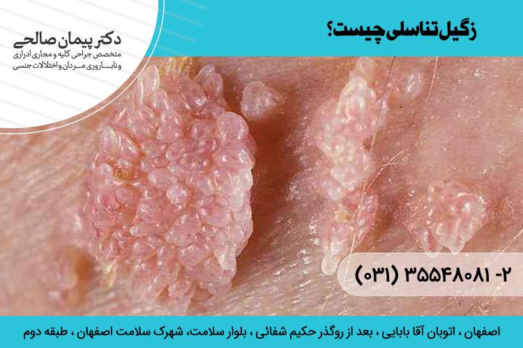 زگیل تناسلی چیست؟  درمان زگیل تناسلی در اصفهان