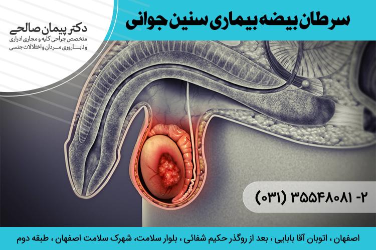 بهترین درمان سرطان بیضه در اصفهان