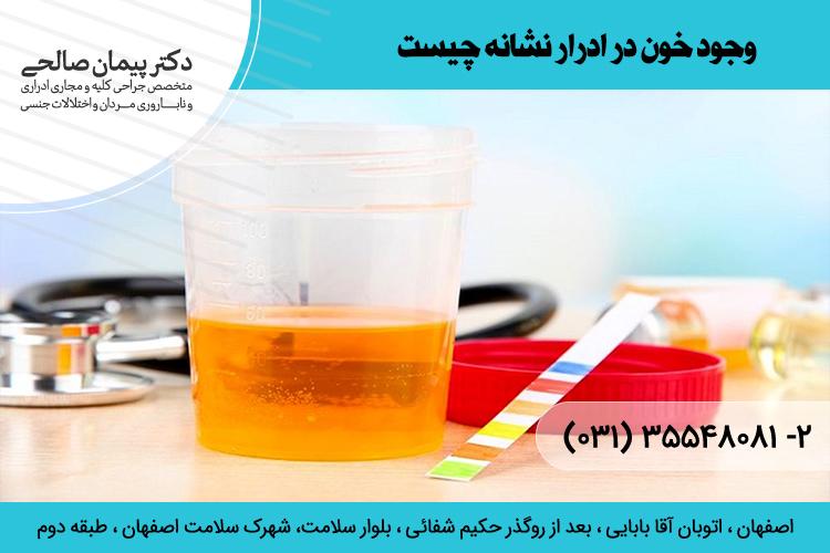 وجود خون در ادرار نشانه چیست و درمان آن در اصفهان