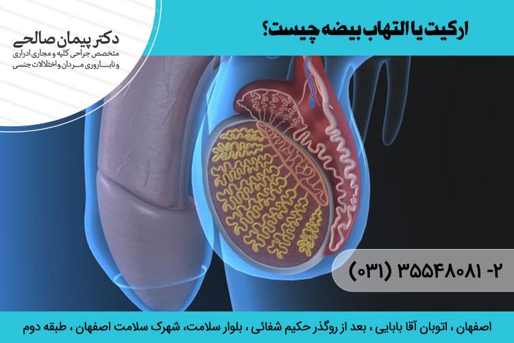 درمان التهاب بیضه در اصفهان