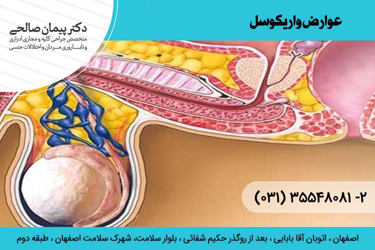 عوارض واریکوسل و درمان آن ، دکتر پیمان صالحی