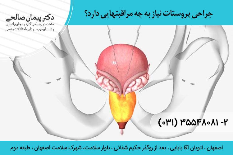 جراح پروستات در اصفهان