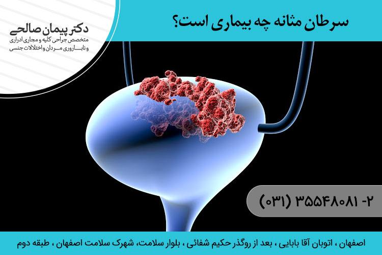 سرطان مثانه چه بیماری است؟
