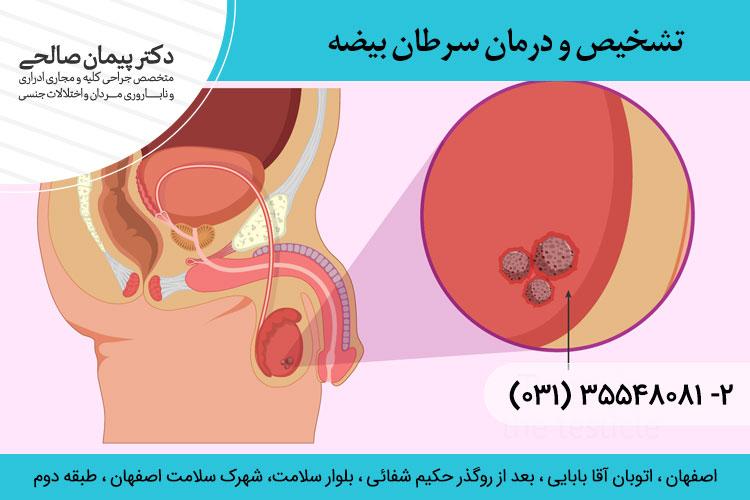 تشخیص و درمان سرطان بیضه