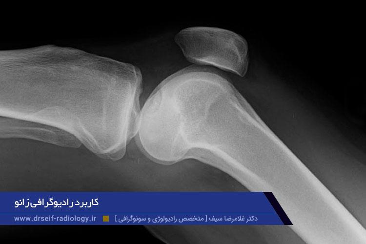 کاربرد رادیوگرافی زانو