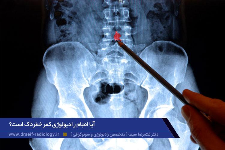 عوارض رادیولوژی کمر